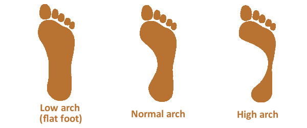 foot arch types high flat normal low